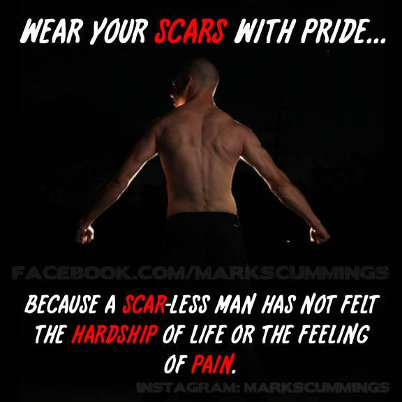 wear your scars